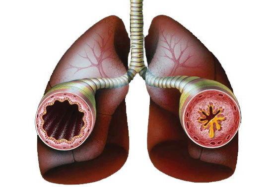 Лечение сухого кашля при бронхите