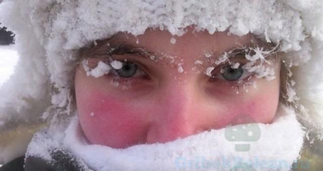 Атопический дерматит в холодное время года