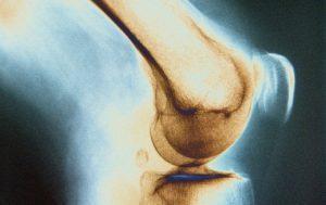 Перелом — какие симптомы присутствуют при повреждении