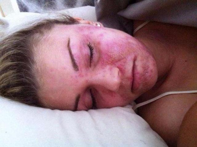 Пероральный дерматит во время беременности чем лечить