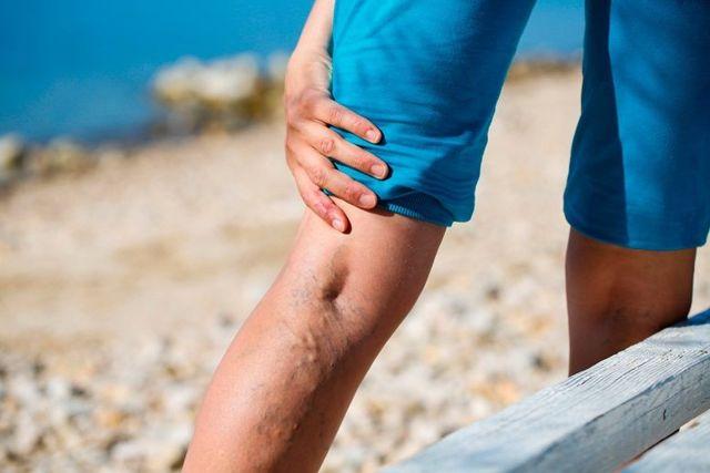 Дерматит нижних конечностей при недостаточности кровообращения