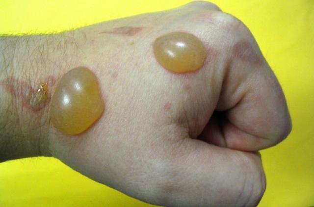 Герпетиформный дерматит дюринга в полости рта