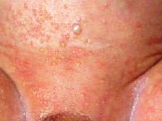 Как лечить пеленочный дерматит у ребенка в домашних условиях?