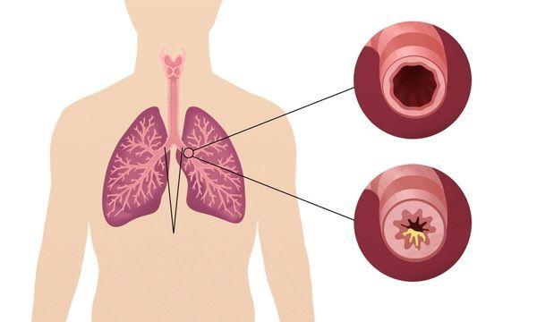 Как остановить кашель до рвоты?