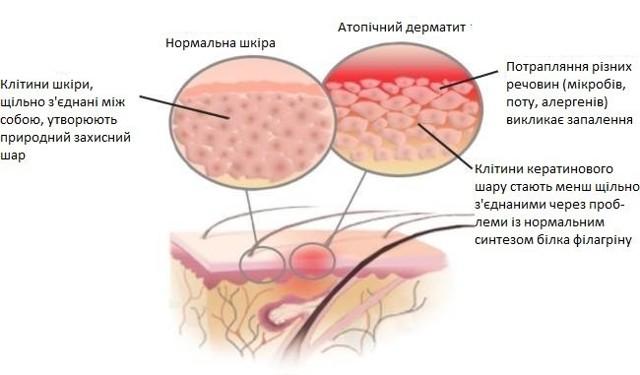В чем разница между атопическим и аллергическим дерматитом