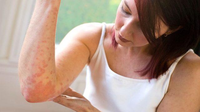 Как отличить псориаз от дерматита под чешуйками ранки?