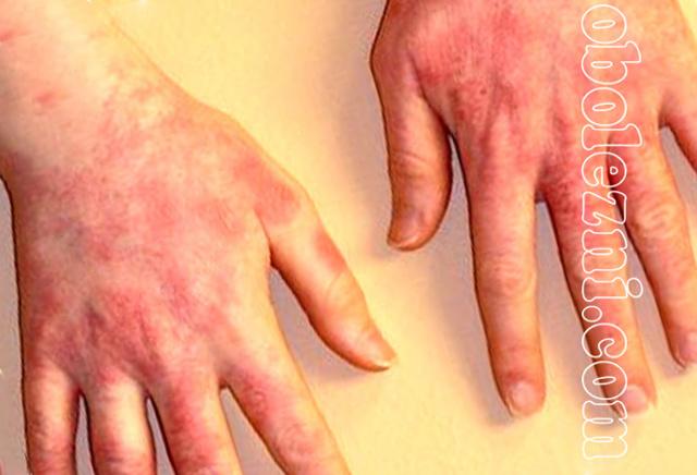 Как выглядит аллергический дерматит у взрослых на руках?