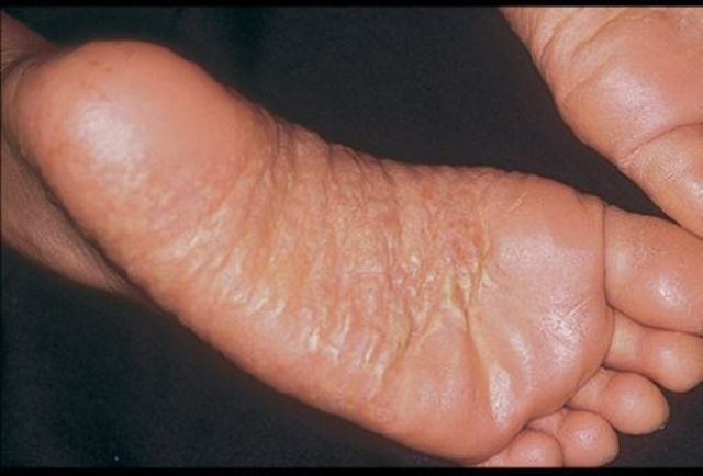 Дерматит у ребенка между пальцами ног