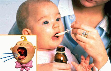 Лечение сухого кашля у грудничка