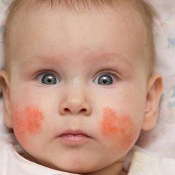 Как выглядит дерматит у детей на теле на начальной стадии?
