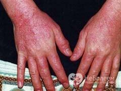 Заболевание дерматит и как его лечить