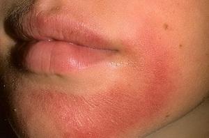 Лекарства при аллергическом дерматите у взрослых