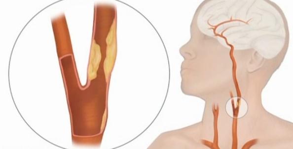 Противопоказания и возможные осложнения операции на сосудах шеи