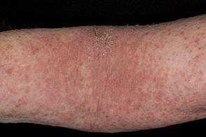Аллергический дерматит на руках и шее от покоса травы триммером
