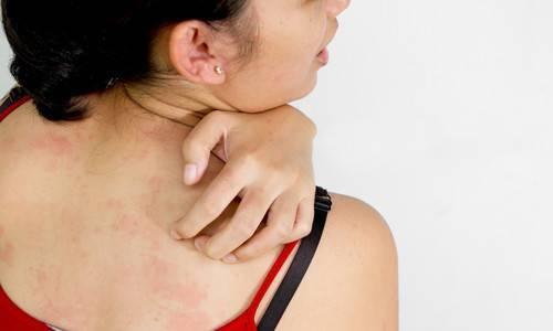 Можно ли принимать ванны при аллергическом дерматите?