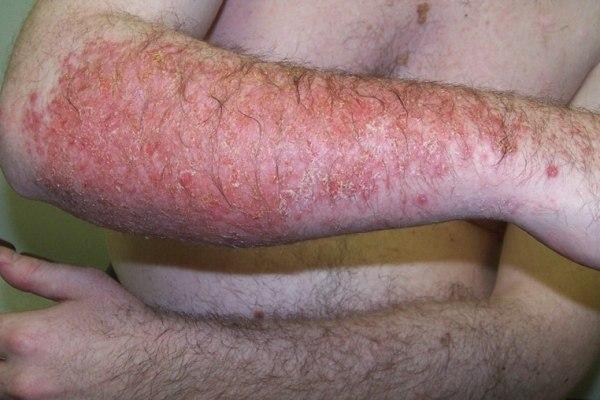 Чем опасен дерматит если не лечить