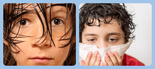 Причины возникновения гипергидроза у детей разного возраста