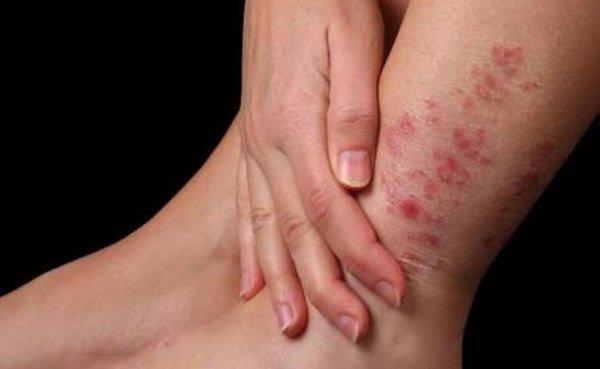 Лечение контактного дерматита на ногах у взрослого