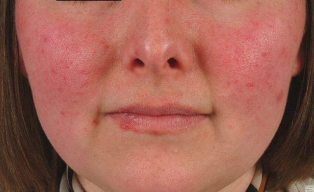 Как отличить дерматит от псориаза у ребенка?