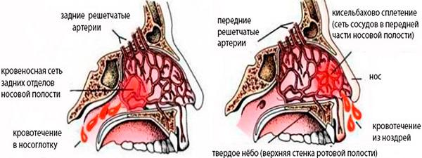 Кровь из носа при каком давлении пониженном или повышенном давлении