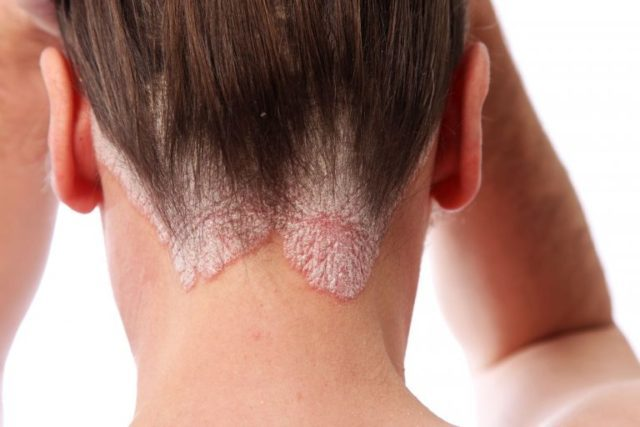 Передается ли себорейный дерматит от человека к человеку