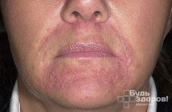 Как снять зуд при периоральном дерматите?