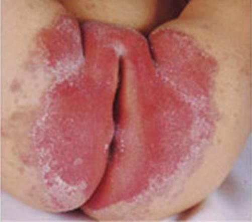Аллергия или пеленочный дерматит как определить