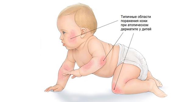 Инвалидность при атопическом дерматите у детей