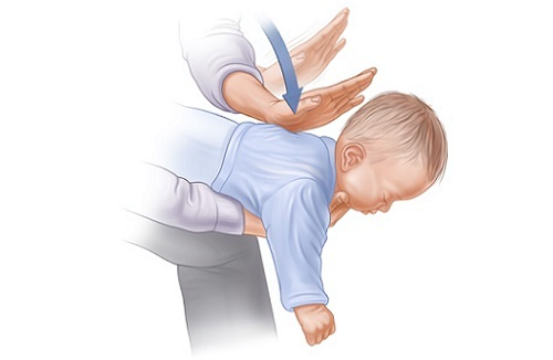 Частое дыхание кашель у ребенка