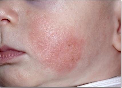 Как лечат атопический дерматит за границей?
