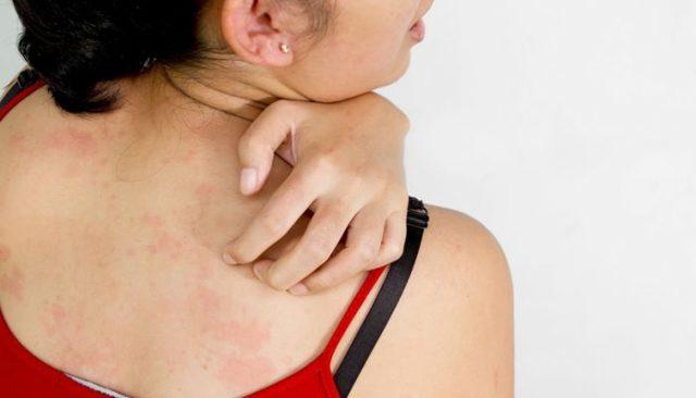 Блошиный дерматит у людей лечение в домашних условиях