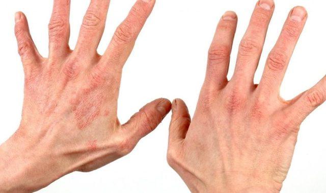 Дерматит на руках причины возникновения и лечение в домашних условиях