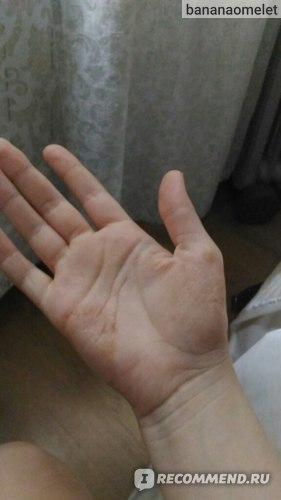 Мазь цицунь басюань от экземы дерматита и псориаза