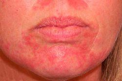 Чем лечить дерматит у ребенка на подбородке