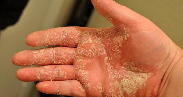 Мазь на основе солидола от атопического дерматита