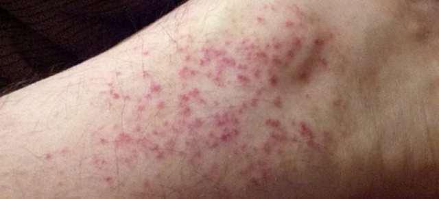 Белые пятна на коже при атопическом дерматите