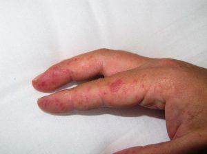 Красные пятна на ручках у ребенка дерматит