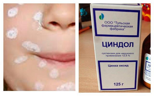 Циндол при атопическом дерматите у детей