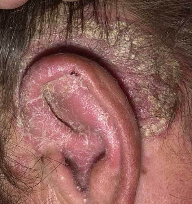 Псориаз себорейный дерматит волосистой части головы