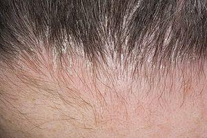 Атопический дерматит на голове у ребенка