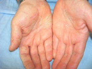 Как вылечить аллергический дерматит на руках?