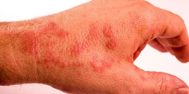 Крем для лечения грибковых заболеваний дерматитов псориаза акне