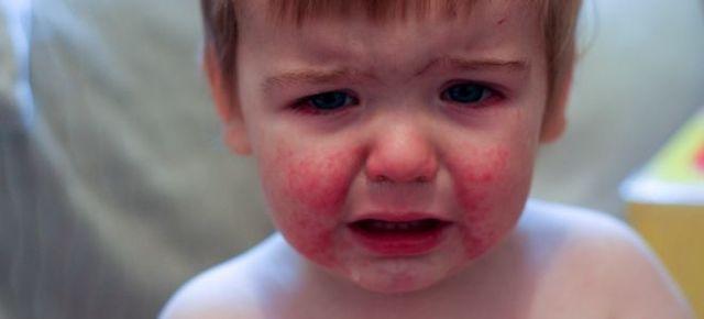 Что такое аллергический дерматит и как его лечить у детей?