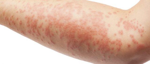 Чем отличается себорея от себорейного дерматита