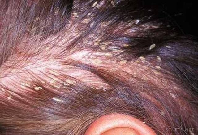 Себорейный дерматит на руках лечение народными средствами