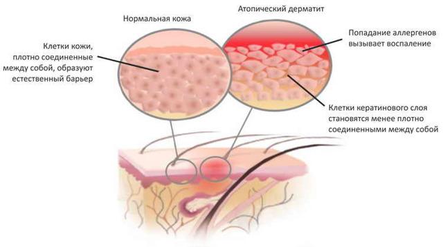 Как лечить дерматит в домашних условиях у детей?