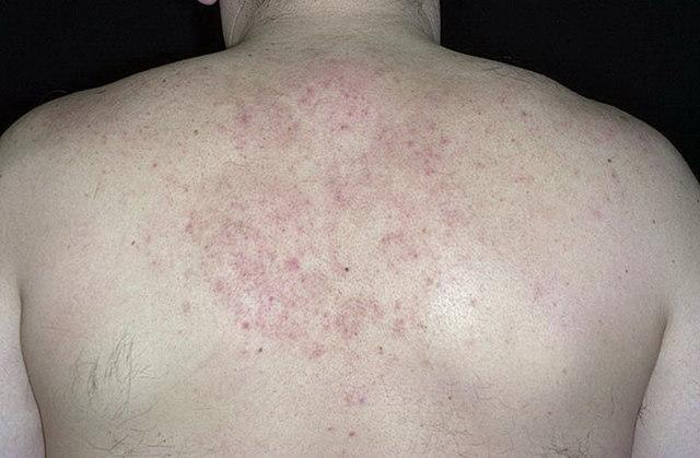 Чем лечить себорейный дерматит на теле у взрослого