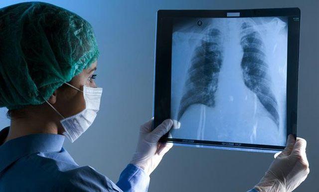 Дерматит после лучевой терапии при раке молочной железы