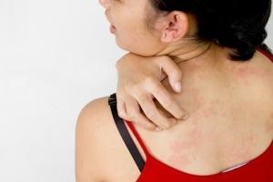 Локобейз рипеа для детей при атопическом дерматите