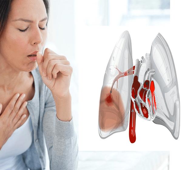 Может ли быть кашель сердечным